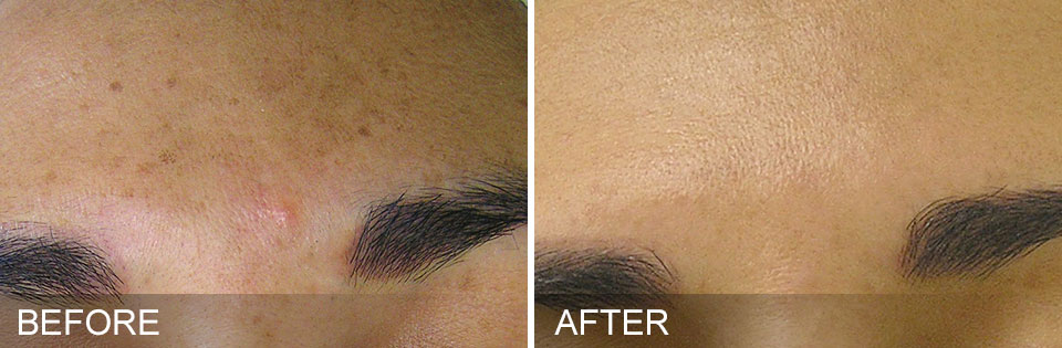 brown spot removal skin resurfacing