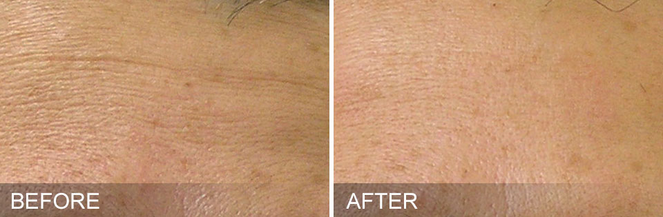 remove wrinkles anti aging