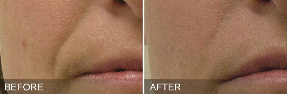 wrinkle reduction revers aging laser treatments