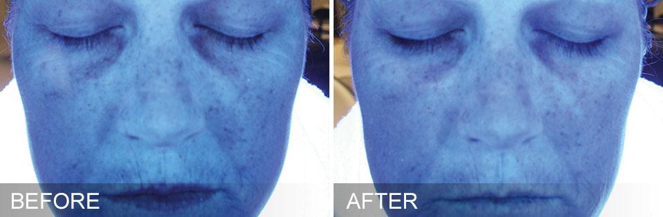 rehydrate skin reverse aging ocala