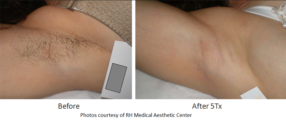 electrolysis permanent hair removal ocala fl